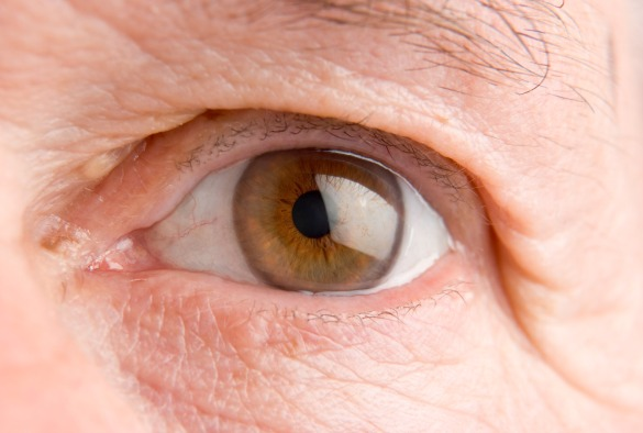 cancer in the eye of the People with eye cancer may experience the following symptoms or signs  sometimes people with eye cancer do not show any of these symptoms or,  these.