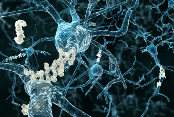 illustration of neurons with amyloid plaques
