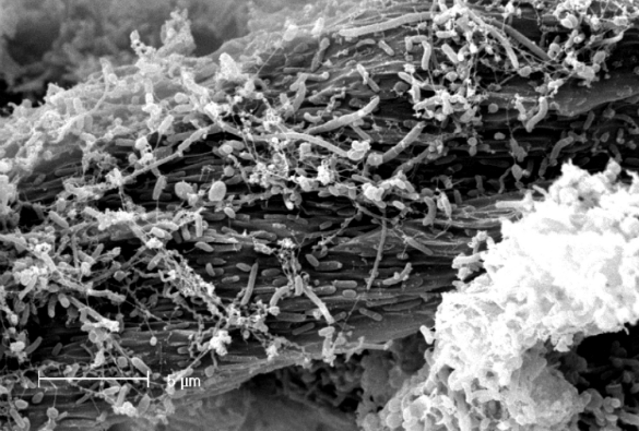 Electron micrograph of microbes from a landfill site colonising and degrading cellulose'