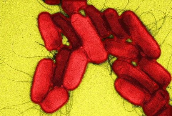 Digitally colourised transmission electron micrograph of Salmonella Typhimurium ST313 cells.
