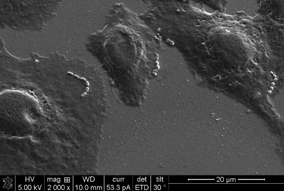 Pneumococci sticking to airway cells